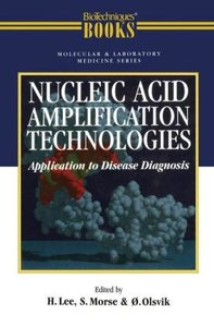 Nucleic Acid Amplification Technologies: Application to Disease