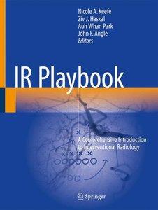 IR Playbook