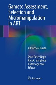 Gamete Assessment, Selection and Micromanipulation in ART