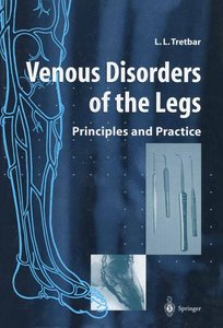 Venous Disorders of the Legs