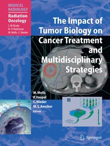 The Impact of Tumor Biology on Cancer Treatment and Multidiscipl