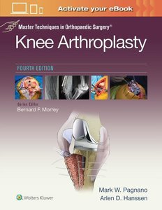 Master Techniques in Orthopedic Surgery: Knee Arthroplasty (Mast