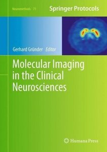 Molecular Imaging in the Clinical Neurosciences