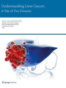 Understanding Liver Cancer