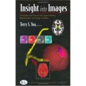 Insight into Images
