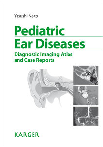 Pediatric Ear Diseases