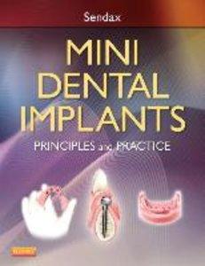 Mini Dental Implants: Principles and Practice