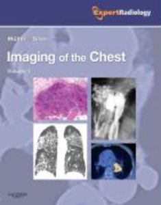 Imaging of the Chest