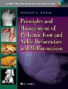 Principles and Management of Pediatric Foot and Ankle Deformitie