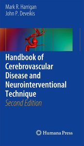 Handbook of Cerebrovascular Disease and Neurointerventional Tech