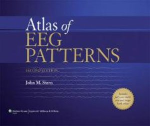 Atlas of EEG Patterns