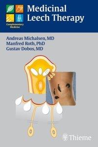 Medicinal Leech Therapy