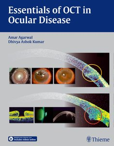 Optical Coherence Tomography in Ocular Disease