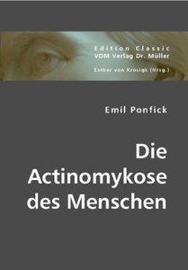 Die Actinomykose des Menschen