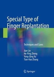 Special Type of Finger Replantation