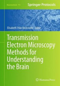 Transmission Electron Microscopy Methods for Understanding the B