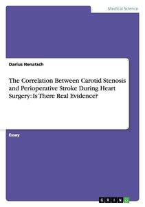 The Correlation Between Carotid Stenosis and Perioperative Stro