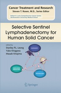 Selective Sentinel Lymphadenectomy for Human Solid Cancer