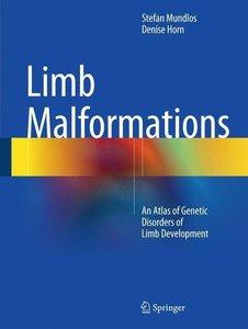 Limb Malformations