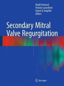 Secondary Mitral Valve Regurgitation