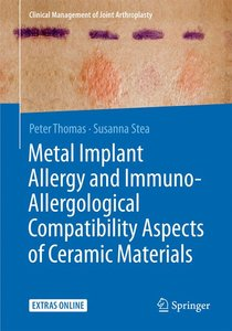 Metal Implant Allergy and Immuno-Allergological Compatibility As