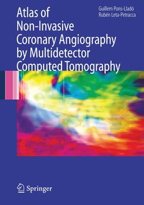 Atlas of Non Invasive Coronary Angiography by Multidetector Comp