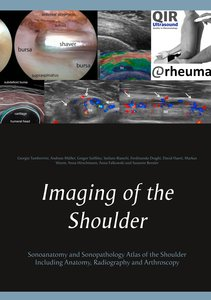 Ultrasound, Anatomy and Arthroscopy of the Shoulder