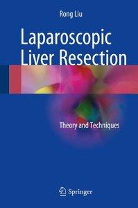 Laparoscopic Liver Resection