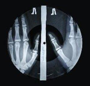 X Ray Audio