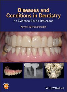 Moharamzadeh, K: Diseases and Conditions in Dentistry