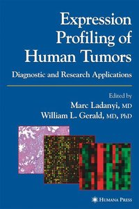 Expression Profiling of Human Tumors