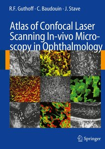 Atlas of Confocal Laser Scanning In-vivo Microscopy in Ophthalmo