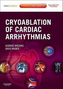 Cryoablation of Cardiac Arrhythmias