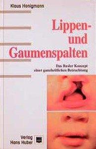 Lippen- und Gaumenspalten