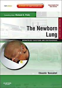 The Newborn Lung
