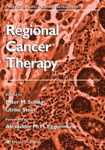 Regional Cancer Therapy