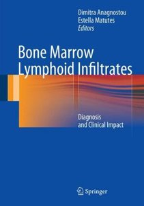 Bone Marrow Lymphoid Infiltrates